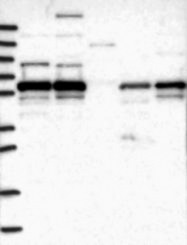 NBP1-81392 - METTL14