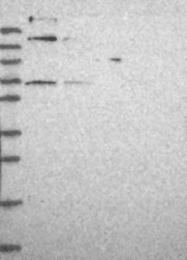 NBP1-92110 - METTL19