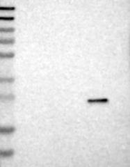 NBP1-85073 - METTL7A