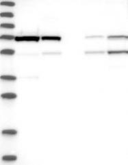 NBP1-85477 - Mitofusin-2