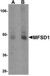 NBP1-76488 - MFSD1 / SMAP4