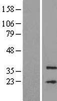 NBL1-13046 - MFSD3 Lysate