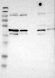 NBP1-93699 - MGAT4C