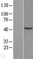 NBL1-18245 - MGC13138 Lysate