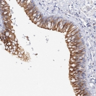 NBP1-88005 - MMP37-like protein