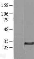 NBL1-13074 - MGC4172 Lysate