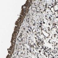 NBP1-86465 - Matrix Gla Protein