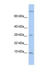 NBP1-57998 - Matrix Gla Protein