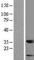 NBL1-13095 - MGST3 Lysate