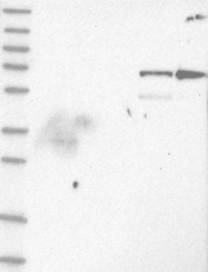 NBP1-81862 - MID2 / RNF60