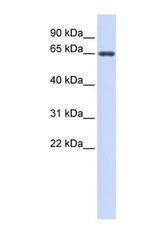 NBP1-70639 - Anti-Muellerian Hormone / AMH