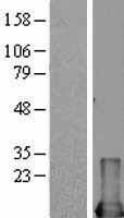 NBL1-13108 - MIF Lysate