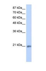 NBP1-57562 - MIF4GD / SLIP1