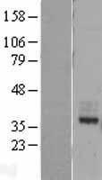 NBL1-11023 - MIR16 Lysate