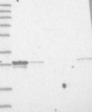NBP1-82828 - MITD1