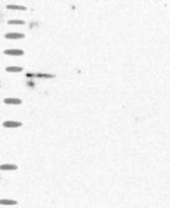 NBP1-92122 - MKKS