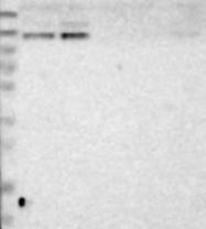 NBP1-83535 - MKL2