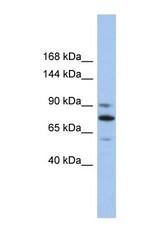 NBP1-58126 - KIF23