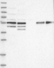 NBP1-84320 - MKRN3 / RNF63