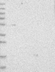 NBP1-88691 - MKS1