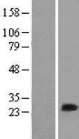 NBL1-13428 - MLC1SA Lysate