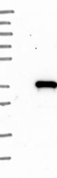 NBP1-82518 - MLF2