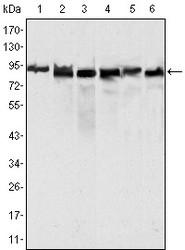 NBP1-47418 - MLH1