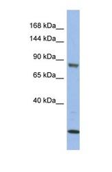 NBP1-58913 - MAP3K11