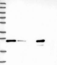NBP1-86602 - MMAB