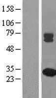 NBL1-13143 - MMAB Lysate