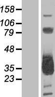NBL1-13144 - MMACHC Lysate