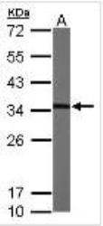 NBP1-32513 - MMACHC