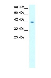 NBP1-57092 - MMP-19