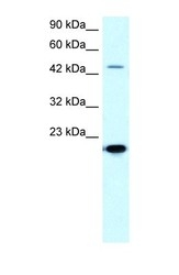 NBP1-57094 - MMP-19