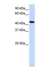NBP1-58899 - MKNK2