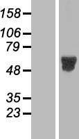 NBL1-13124 - MNK2 Lysate