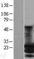 NBL1-13171 - MOBKL2A Lysate
