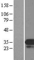 NBL1-13173 - MOBKL3 Lysate