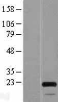 NBL1-13175 - MOCS2 Lysate