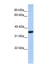 NBP1-59769 - MOGAT1