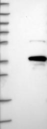 NBP1-85230 - MOGAT2