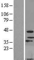 NBL1-13178 - MOGAT3 Lysate