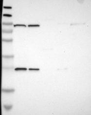 NBP1-81839 - MOGS / GCS1