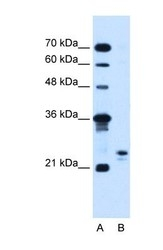 NBP1-60035 - MOSPD3