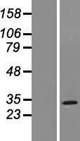 NBL1-13193 - MOSPD3 Lysate