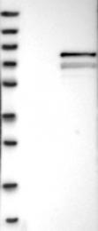 NBP1-85014 - MPP3