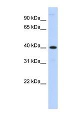 NBP1-69305 - Metallophosphoesterase 1