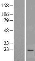 NBL1-13211 - MPV17 Lysate