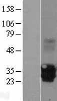 NBL1-13215 - MPZL2 Lysate