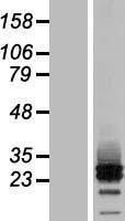 NBL1-08508 - MRAP2 Lysate